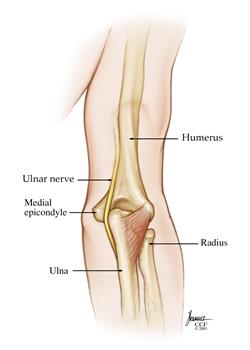 Surprising Dislocated Elbow Cleveland Clinic Wiring Digital Resources Instshebarightsorg