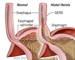 hiatal hernia symptoms, surgery, treatment & more | cleveland clinic, Human Body