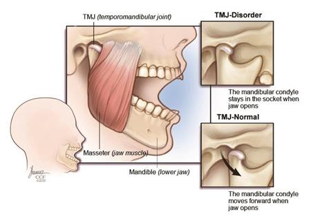a study on transmandibular joint dislocation Of dislocation, the examination findings can be obscured by ecchymosis and swelling plain 2-view radiographs that include the wrist, forearm, and elbow are critical for the evaluation.