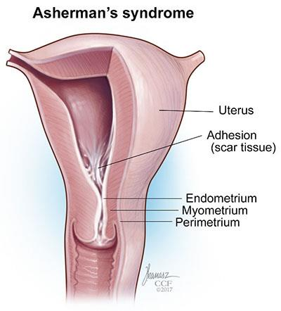 Asherman S Syndrome Adhesions Cleveland Clinic