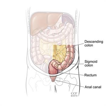 Large Bowel Intestinal Obstruction I Cleveland Clinic