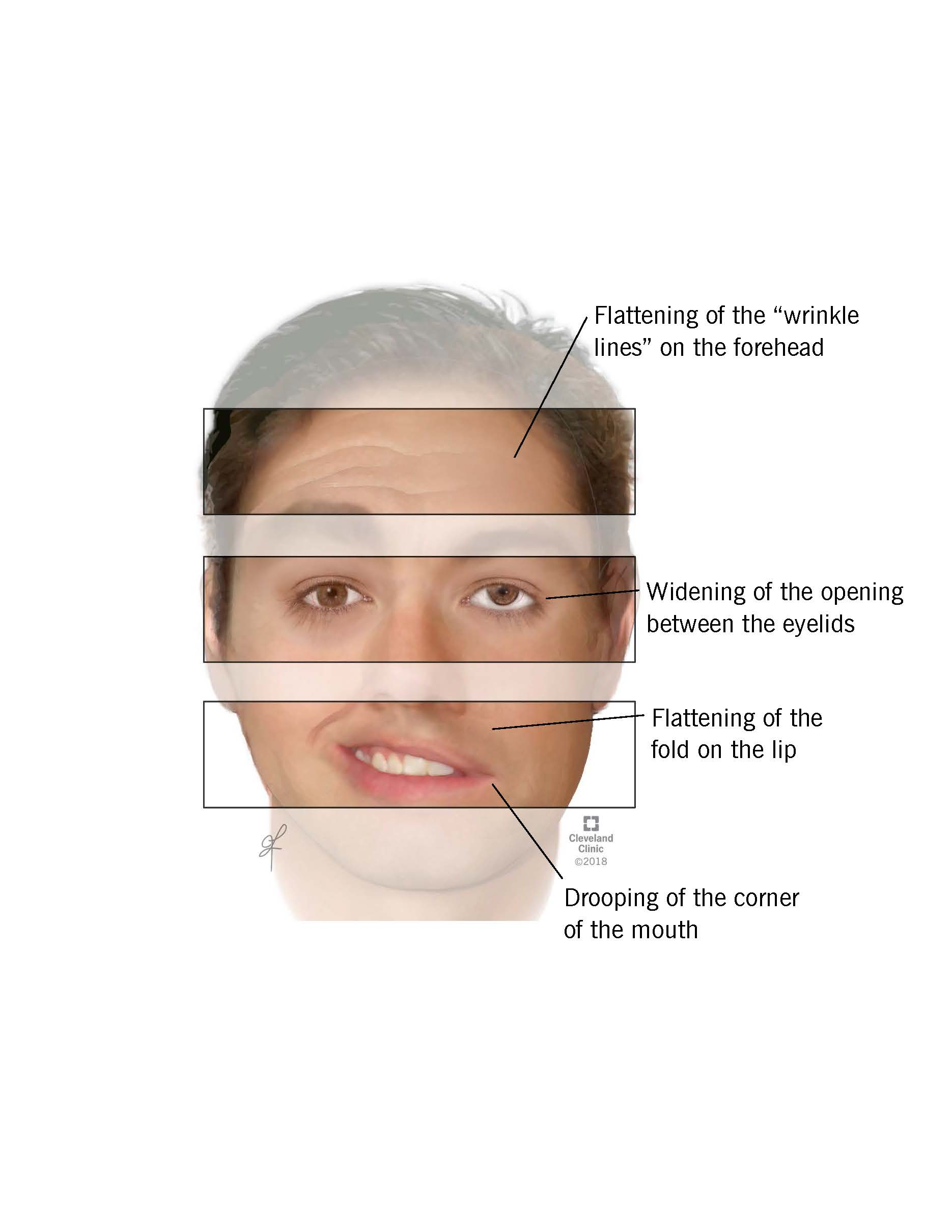 Facial symptoms of Bell's palsy.