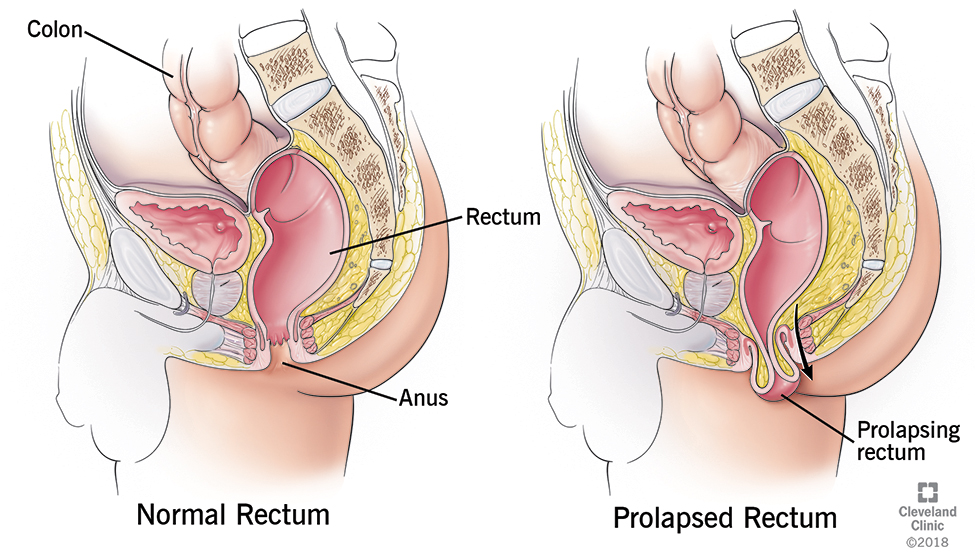 Rectal Prolapse Cleveland Clinic