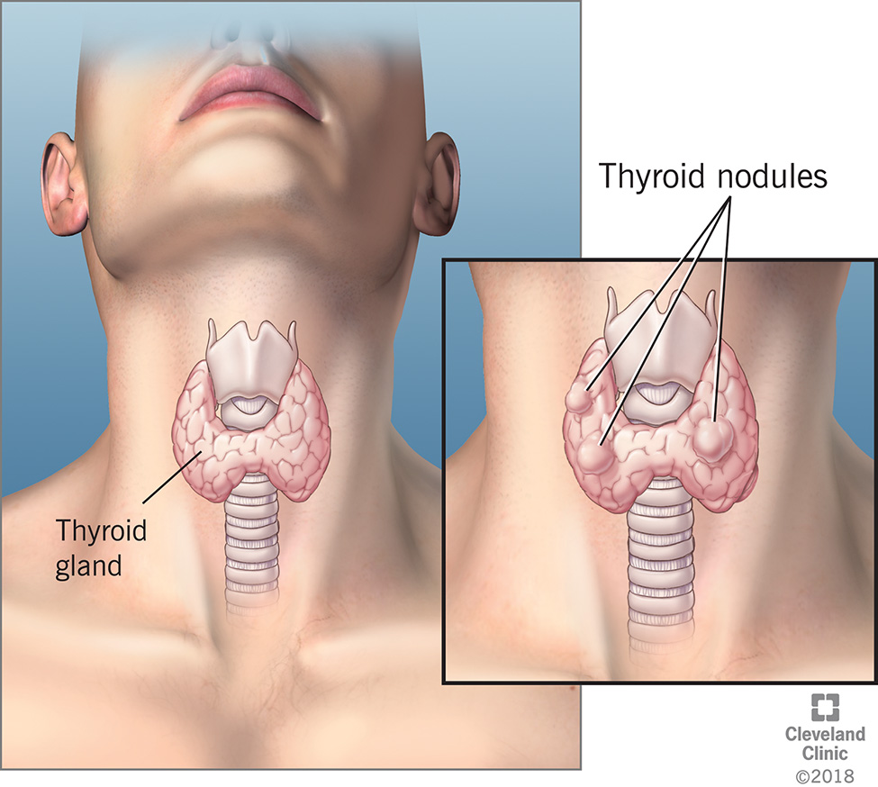 Thyroid Nodule Cleveland Clinic