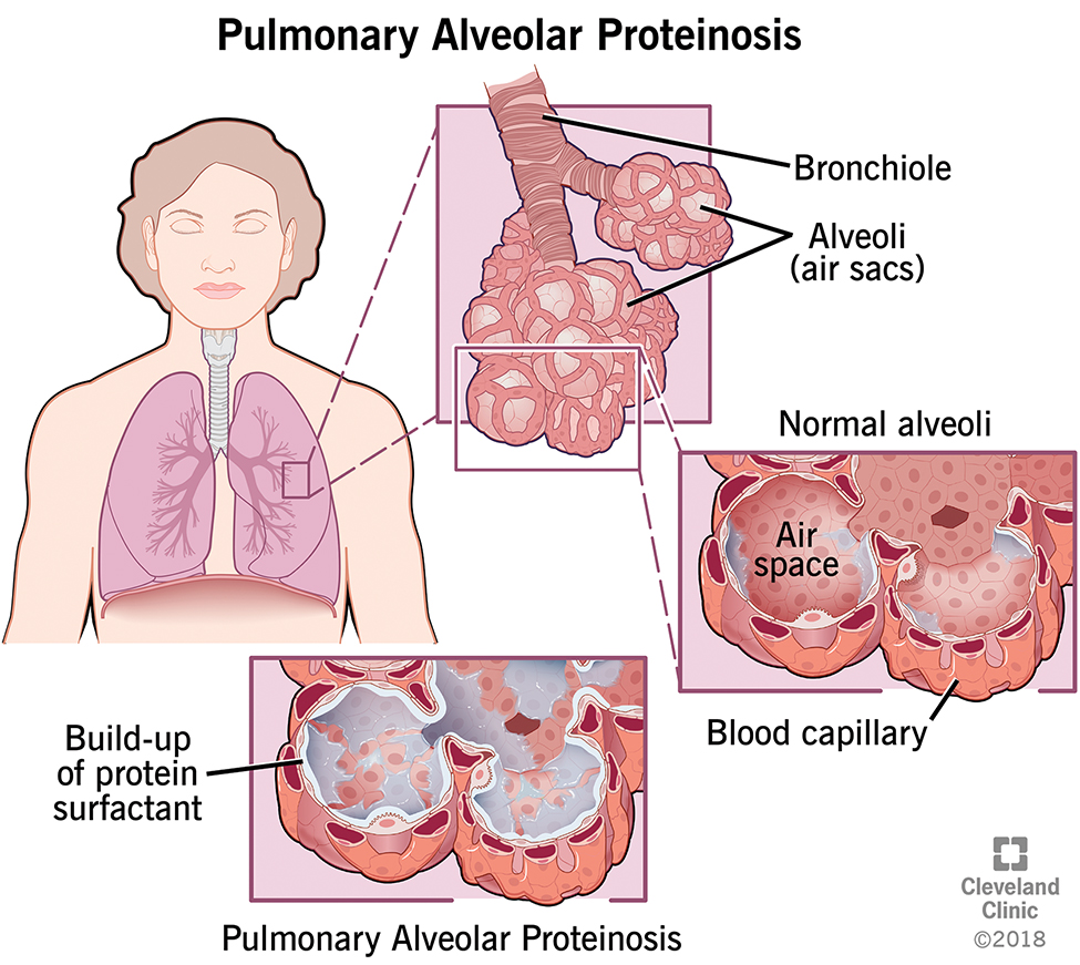 pulmonary alveolar proteinosis (pap) | cleveland clinic