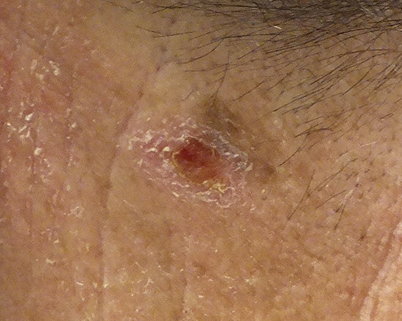 Melanoma arising in seborrheic keratosis. Lesion on the neck of a 55-year-old male.