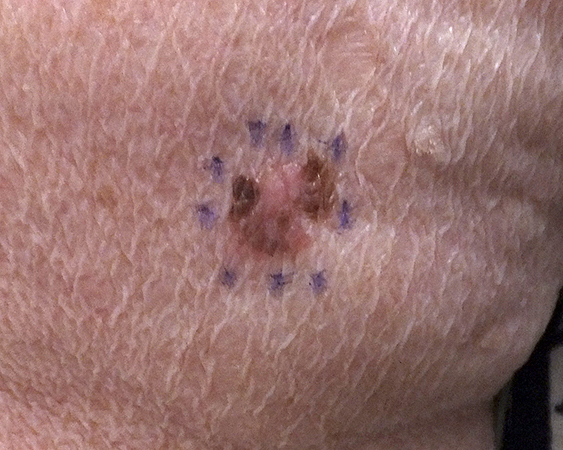 Melanoma arising in seborrheic keratosis. Lesion on the upper extremity of a 75-year-old female.