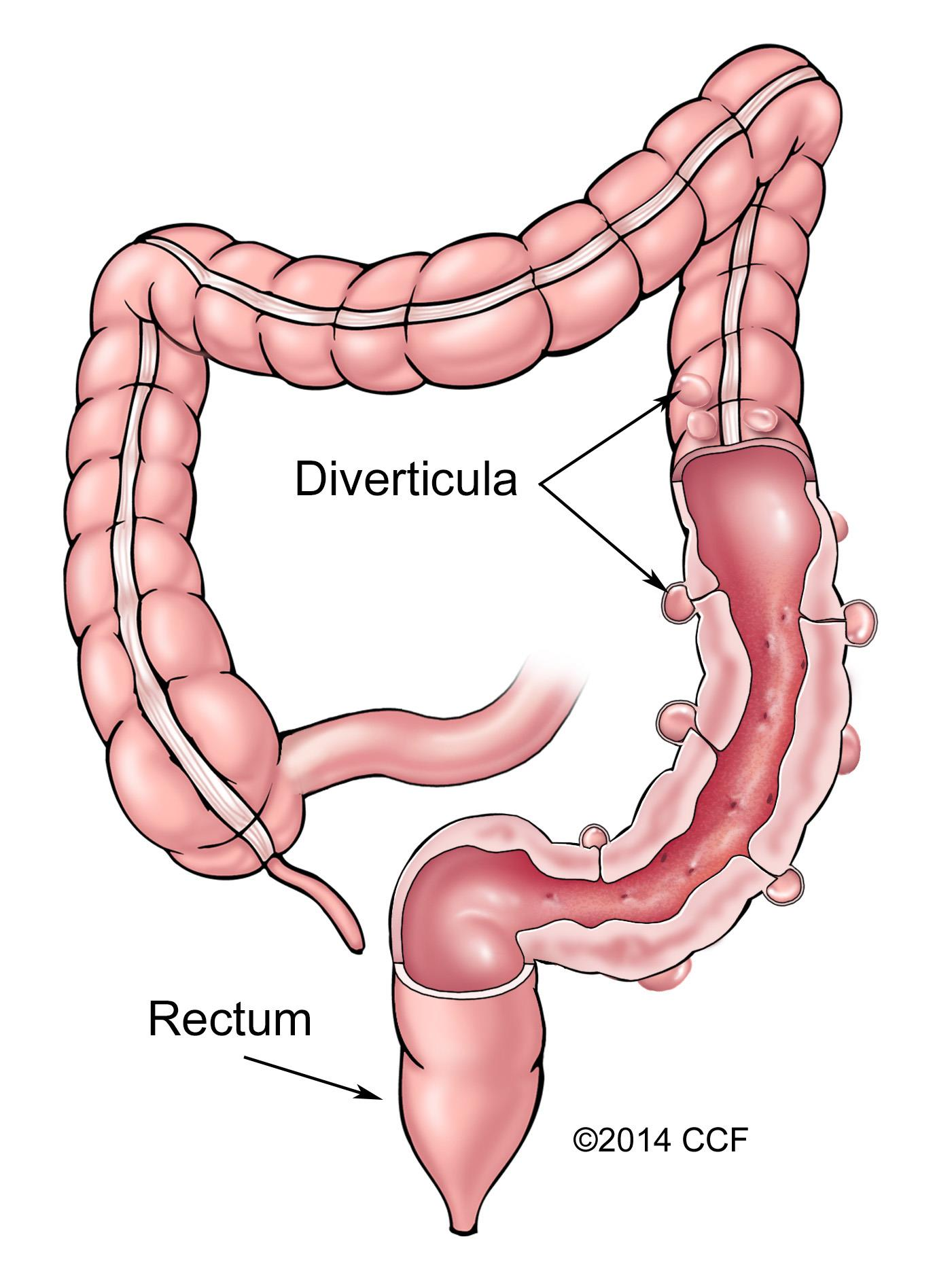 Diverticulosis Amp Diverticulitis Cleveland Clinic