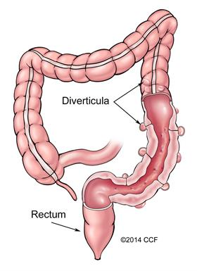 Crosscut of colon with diverticula.