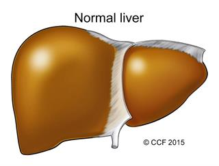 A normal liver, brown to reddish-brown in color, has a smooth exterior surface.