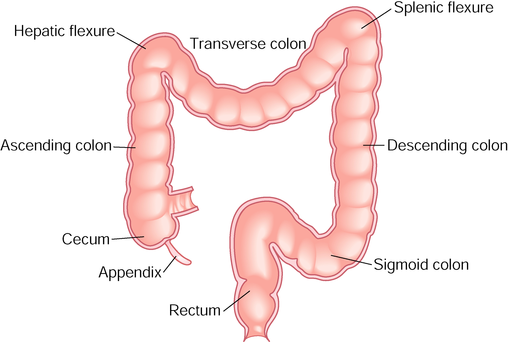 colon cancer hepatic flexure icd 10)