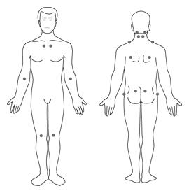 """Fig. 2: Common areas of pain and tenderness (called \""""tender points\"""") in people who have fibromyalgia."""