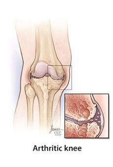 arthritic knee | Cleveland clinic