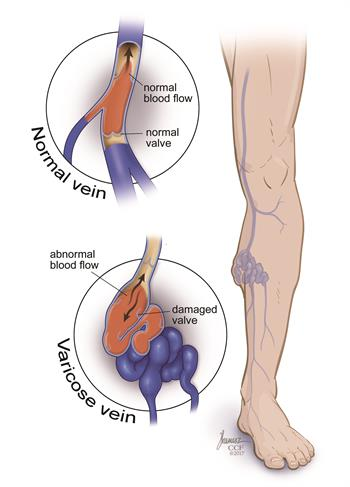 Varicose vein in the leg | Cleveland Clinic