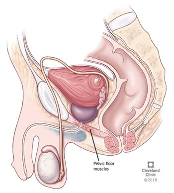 Pelvic Floor Dysfunction: Symptoms, Causes & Treatment