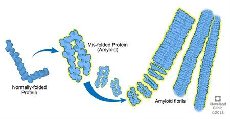 Amyloid protein | Cleveland Clinic
