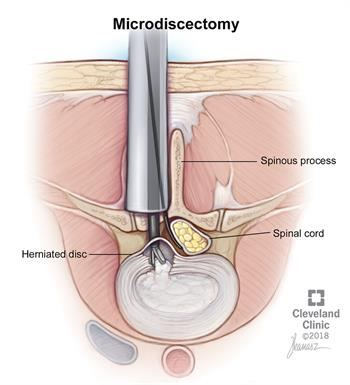 microdiscectomie | Clinique de Cleveland