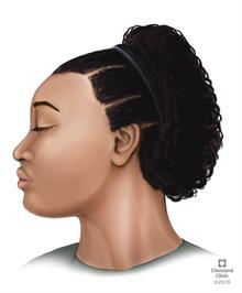 Hair Loss In Women Cleveland Clinic