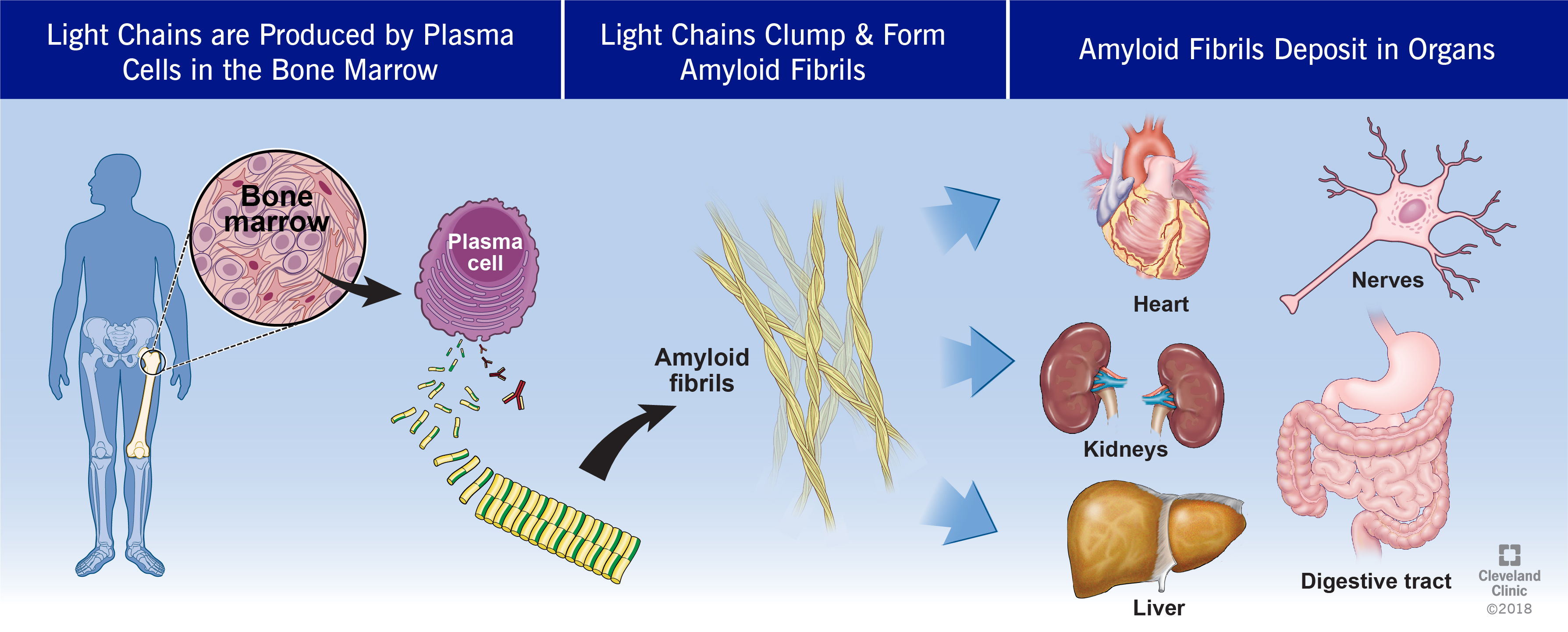 Amyloidoses Light Chain