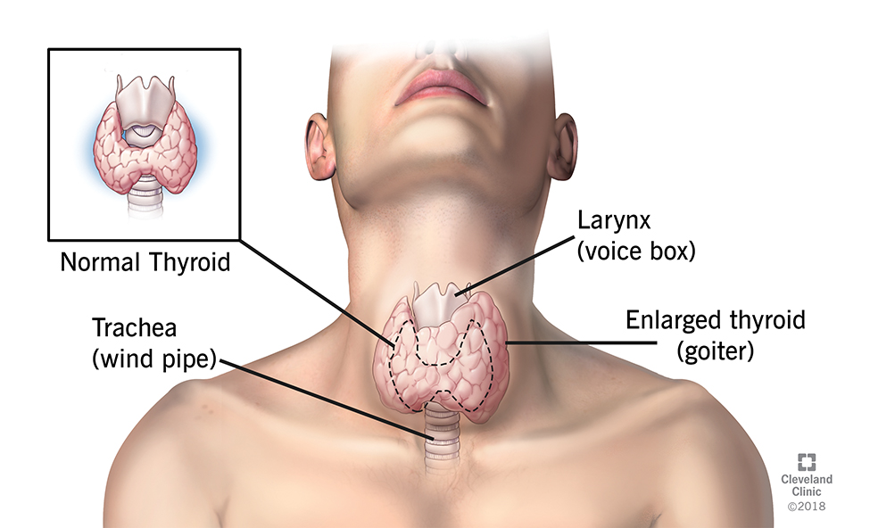 Goiter Causes Risk Factors Symptoms Diagnosis Treatment