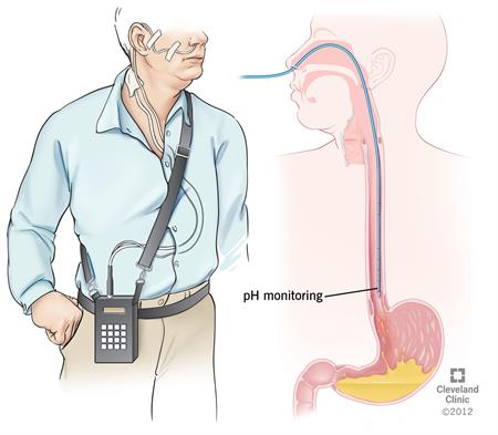 PH Monitoring | Cleveland Clinic