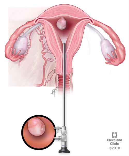 Illustration - a long metal instrument called a curette to collect tissue from the inner walls of the uterus | Cleveland Clinic