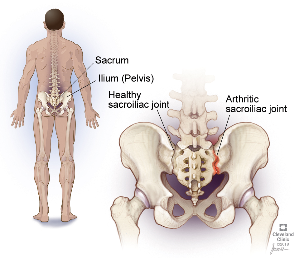 sacrum in addition to si cigaret pain