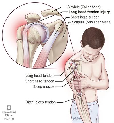 biceps tendon injuries
