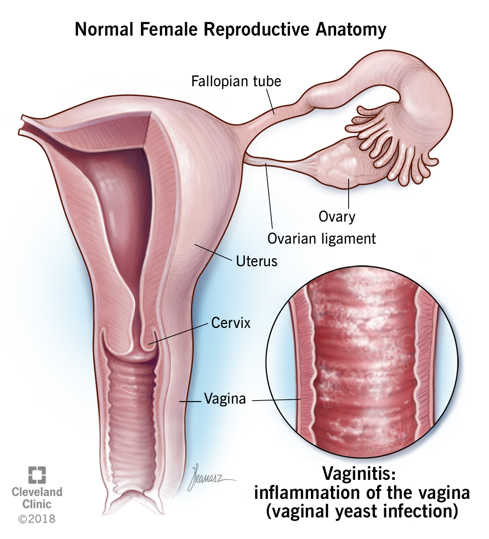 Normal anatomy and vaginitis
