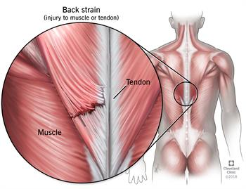 Back Strains And Sprains