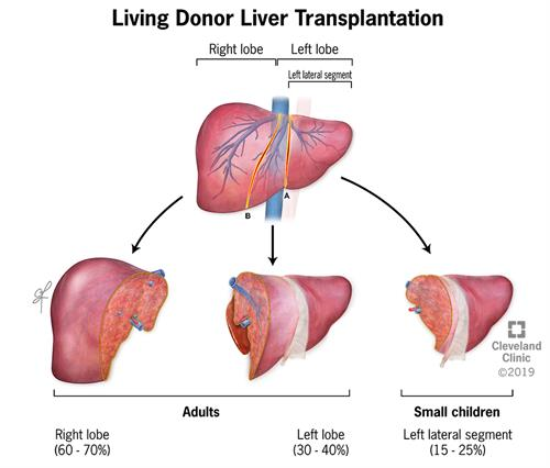 Sections of the liver used for liver transplant