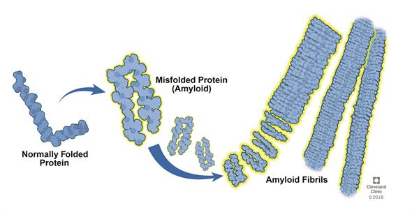 Amyloid Fibrils Formation