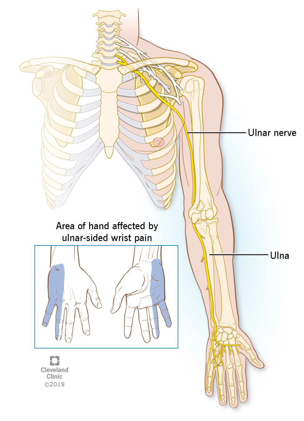 Position of ulnar nerve in a human runs from the neck, down arm, to pinkie finger. Inset picture shows front and back side of hand affected by ulnar-sided wrist pain.