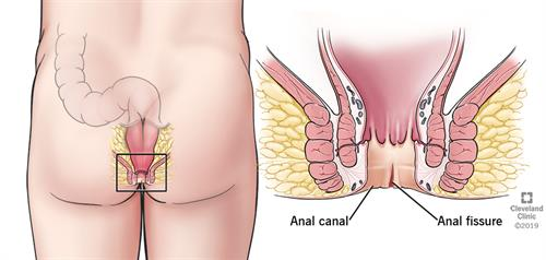 anal canal, anal fissure