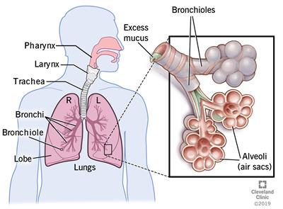 Mucus in the bronchial tubes when you have bronchitis