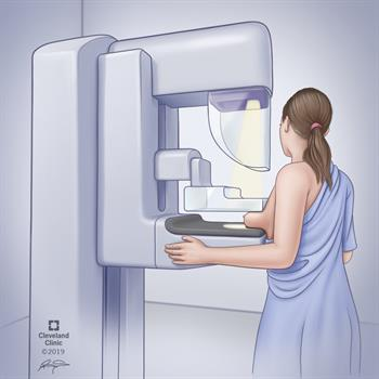 position of breast during mammogram