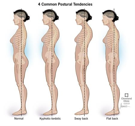 Four common postural tendencies include normal, kyphotic-lordotic, sway back and flat back.