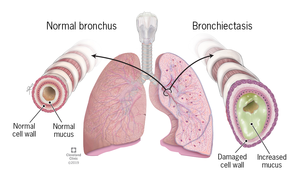 Normal cell wall of the bronchus vs the damaged cell wall and increase in mucus that causes bronchiectasis.