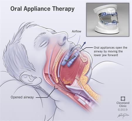 Oral appliance shown opening up the airway by moving the lower jaw forward.