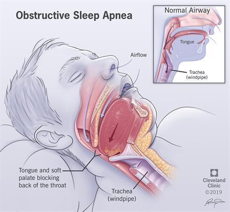 Sleep Apnea Causes Symptoms Tests Treatments