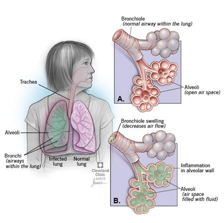Woman with pneumonia displayed by green hue in right lung. Close-up images show normal airway and air spaces and one with pneumonia -- with narrowed airway and air spaces filled with mucus and fluid.