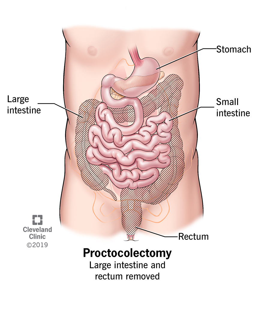 Proctocolectomy (large intestine and rectum removed), rectum, large intestine, small intestine, stomach