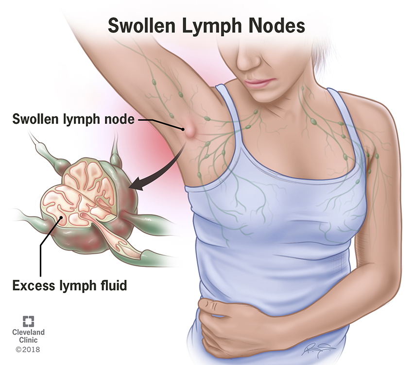 Swollen Lymph Nodes in your armpit.