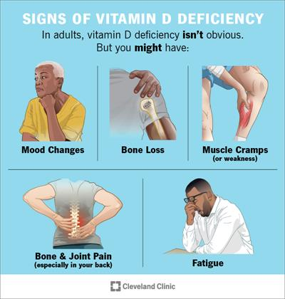 Vitamin D deficiency symptoms include mood changes, bone loss, muscle cramps, joint pain and fatigue | Cleveland Clinic