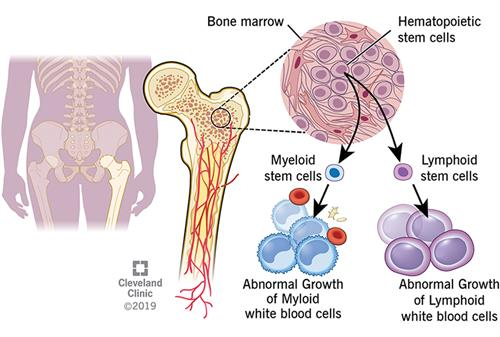 Process of how leukemia develops, starting in the bone marrow.