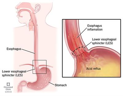 Acid refluxing back into the esophagus from the stomach