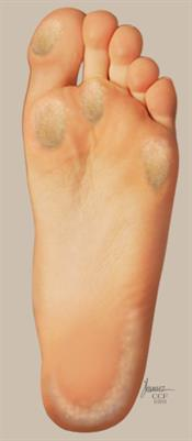 Calluses form on the weight-bearing areas of the bottom of your feet.