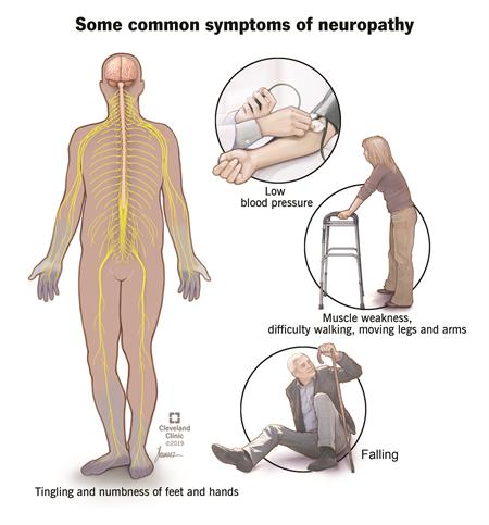 Some of the common symptoms of neuropathy are depicted in pictures: falling (man with a cane sitting on the ground), muscle weakness / difficulty walking (woman using a walker), and low blood pressure (blood pressure cuff).