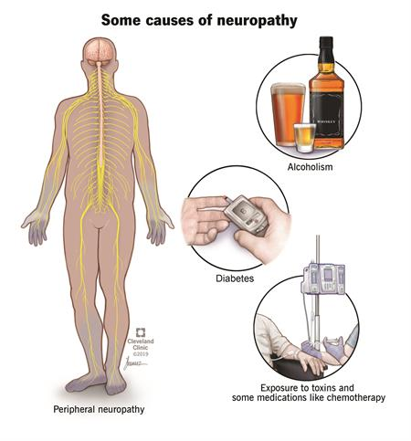 Some of the common causes of neuropathy are depicted in pictures: diabetes (glucose monitor), chemotherapy (IV line into patient) and alcoholism (bottles of liquor).