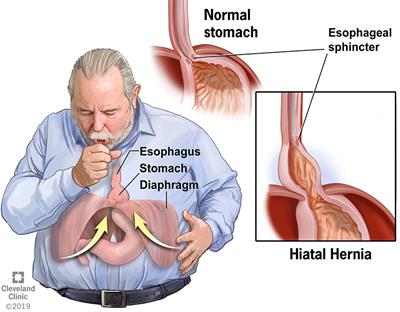 A coughing man with hiatal hernia